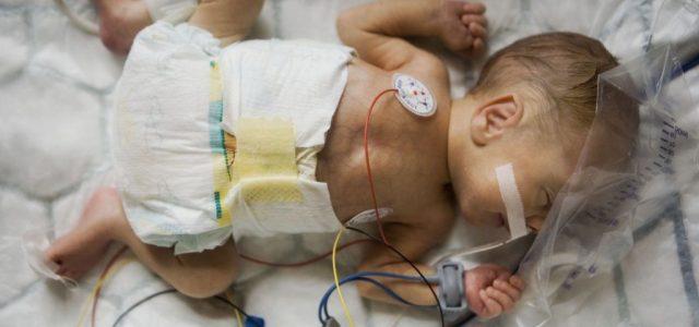 Van olyan kórház, ahol mindössze napi 10 percet lehet a szülő a koraszülött gyermeke mellett