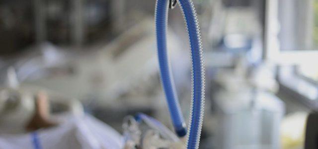 Hegyi Péter: Háromezer lélegeztetőgépre van elég intenzíves szakápoló
