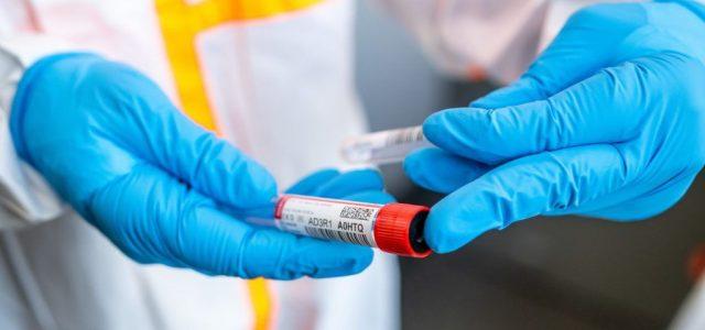Szlovákiában ma is rekordot döntött az új fertőzöttek száma