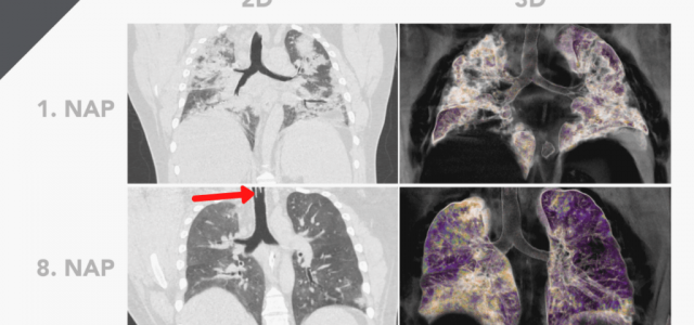 Képeken, ahogy a tüdő összeesik a koronavírustól